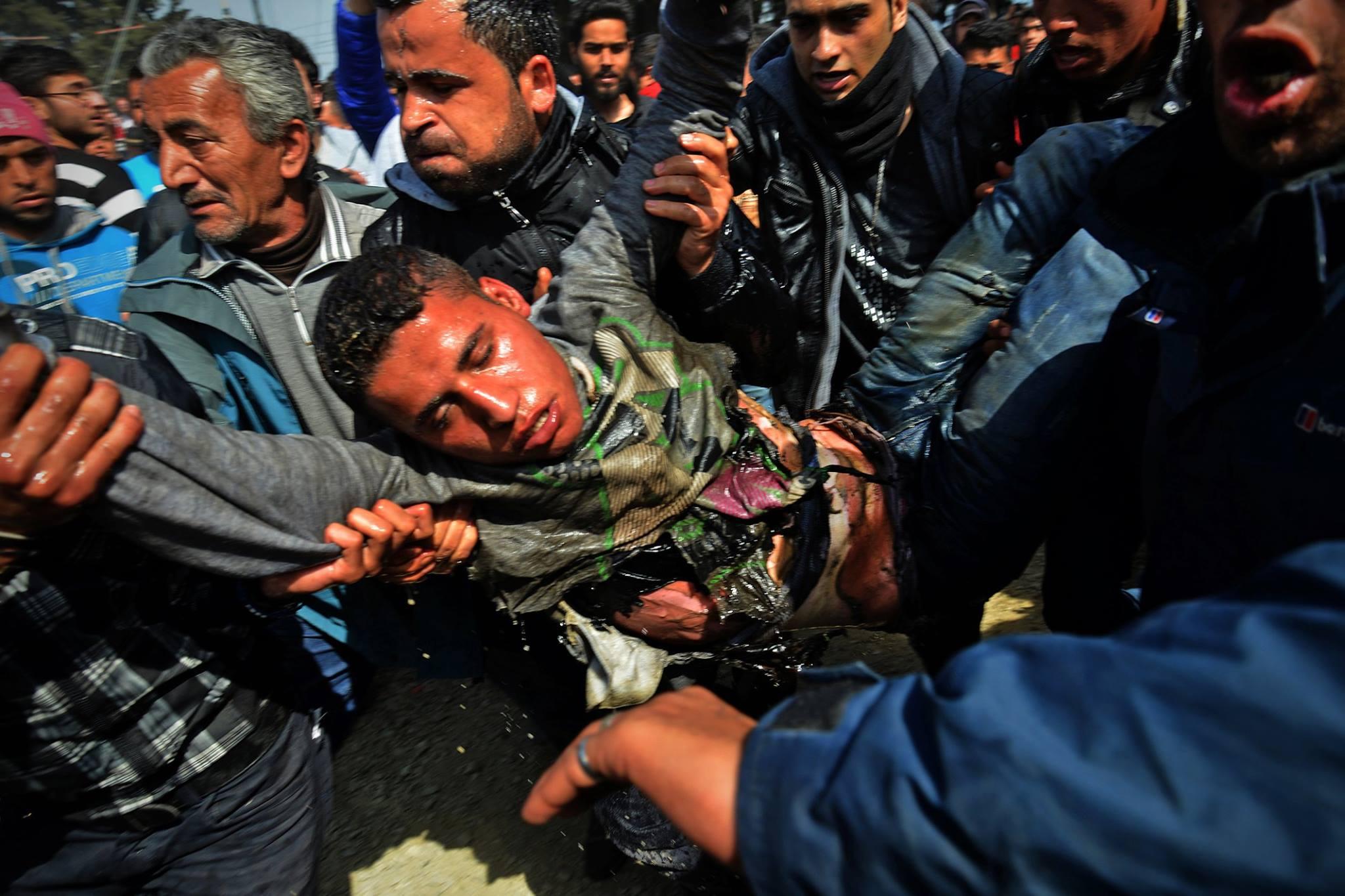 refugiado se prende fuego en idomeni
